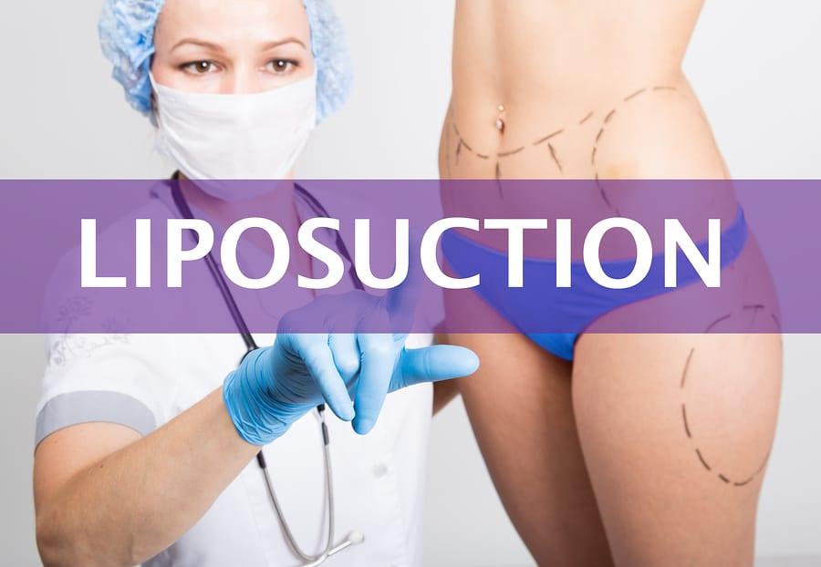 Übernahme der Kosten einer Liposuktion der Beine