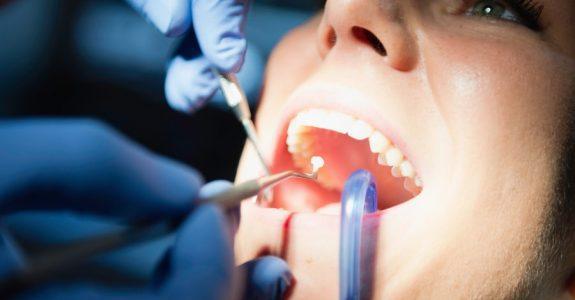 Fehlerhafte Zahnarztbehandlung – Patient muss Zahnarzt Nacherfüllung einräumen