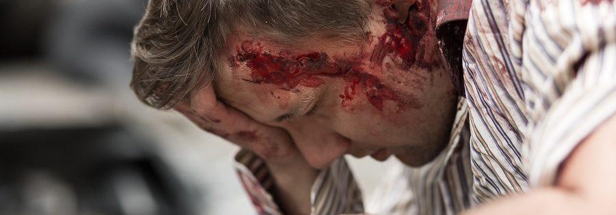 Verkehrsunfall: Schmerzensgeld bei Schädel-Hirn-Trauma