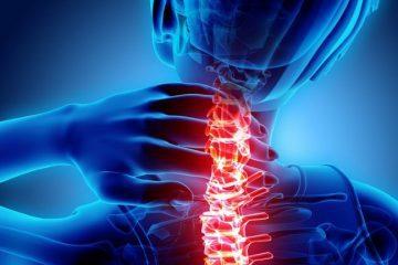 Verkehrsunfall: Schmerzensgeld für HWS-Distorsion bei Vorschädigung