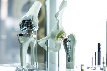 Fehlerhafte Implantation einer Kniegelenksprothese – Schmerzensgeld