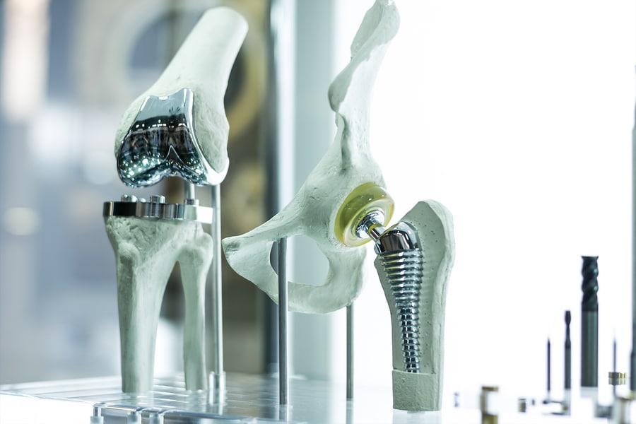 Fehlerhafte Implantation einer Kniegelenksprothese - Schmerzensgeld