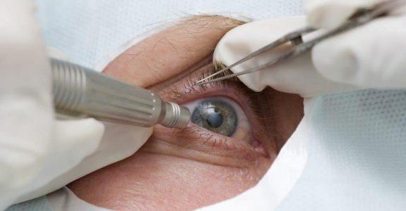 Unfallversicherung: Vorinvalidität - bereits bestehende Beeinträchtigung des Sehvermögens