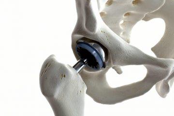 Unfallversicherung – Teilinvalidität nach Hüftgelenksimplantation