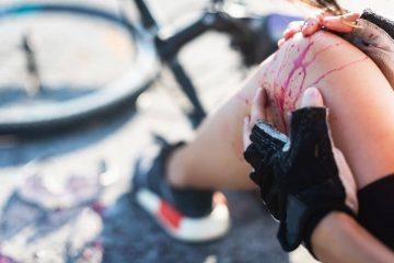 Verkehrsunfall – Schmerzensgeldanspruch bei schweren Fuß- und Beinverletzungen mit Dauerfolgen