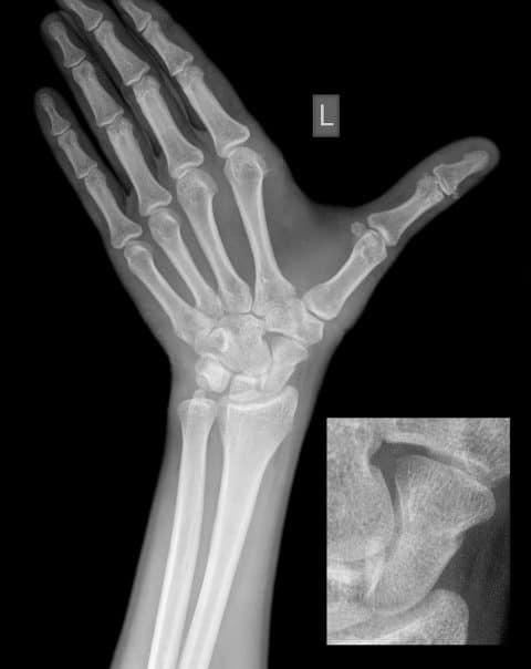 Schmerzensgeldanspruch bei fehlerhafter Behandlung eines Kahnbeinbruchs