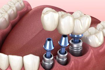 Beihilfefähigkeit eines dritten Zahn-Implantats