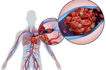 Thromboembolie mit beidseitiger Lungenembolie aufgrund Verhütungsmittel?
